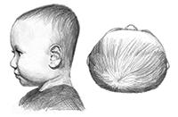 Brachycephaly
